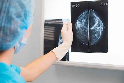 Why Do I Need a Mammogram?